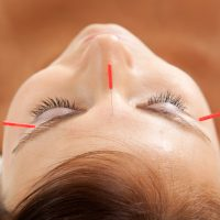 Services_Acupuncture_Landing Page